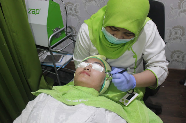 review zap photo facial