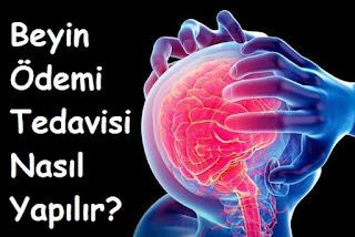 Beyin Ödemi Tedavisi Nasıl Yapılır