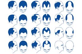 6 Signs Of Hair Loss