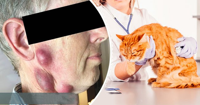 This Man Is Left With Painful Balls On The Neck, The Doctors Say That The Cat Is The Cause