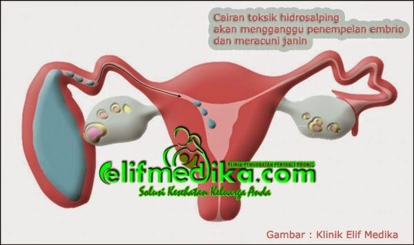 Air toksik dapat mempengaruhi penempelan embrio pada dinding rahim.