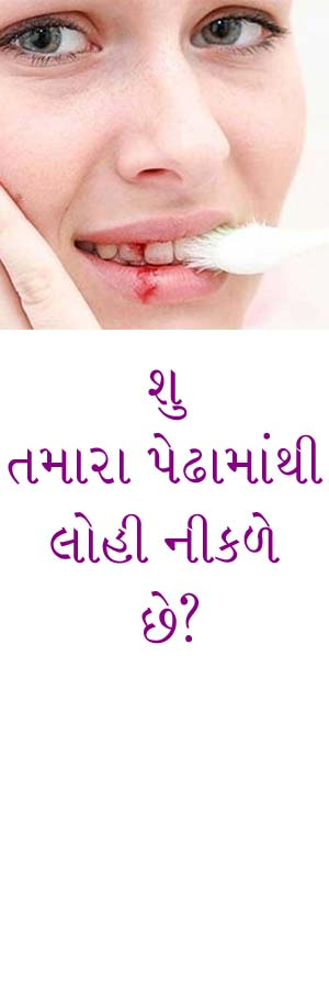 http://www.drkatarmal.com/2014/11/bleeding-gums-care-gujarati-article.html