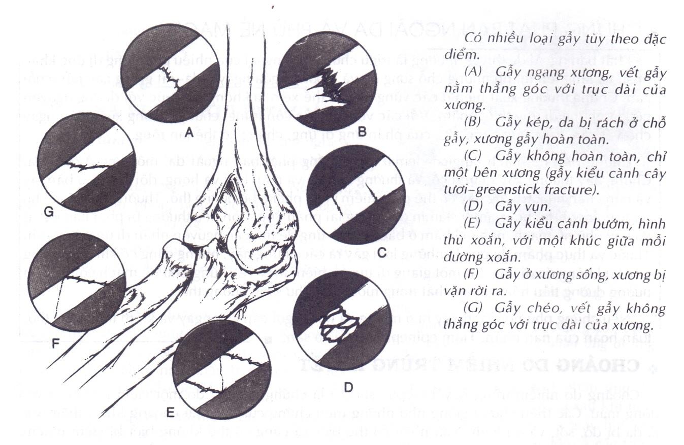 Gãy xương là tình trạng rất nguy hiểm và để lại biến chứng