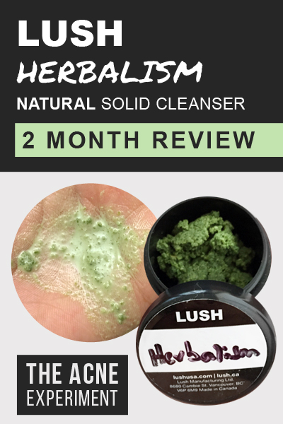 Lush Herbalism Natural Solid Cleanser / 2 Month Review :: The Acne Experiment