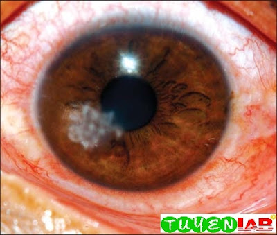 Fig. 2: Slit lamp photograph of fungal corneal ulcer in the early stages of the infection in which the ulcer is just beginning to progress with the typical feathery margins at the 7'O clock position. The feathery margin is pathognomonic of a fungal corneal ulcer