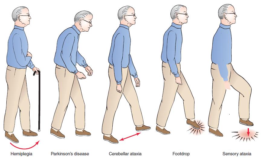 Parkinson Verlauf Wikipedia