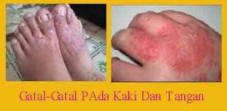 https://obatkhususgatal.blogspot.com/2017/07/cara-mengobati-gatal-kulit-dengan-benar.html