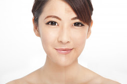 Dehydrated skin can trigger aging in the skin