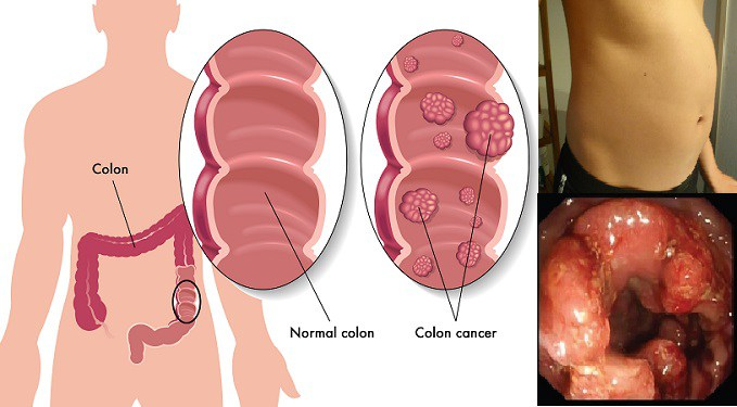 Out of 20 People, 1 is at Risk of Colon Cancer: Here are 10 Disturbing Signs!