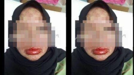Wajah Wanita Ini Rusak Akibat Minum Obat Sakit Gigi