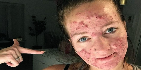 terrible acne scars
