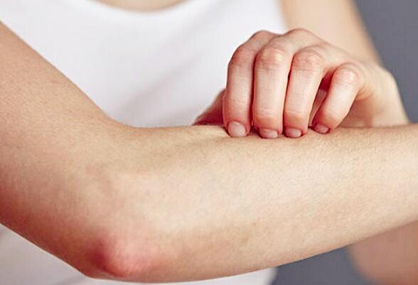 Macam jenis penyakit kulit