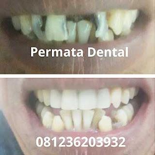 gambar foto gigi rusak karies koropos ompong hitam renggang yang diperbaiki dengan komposite