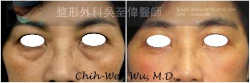 眼袋-lower%2B2017-x-500