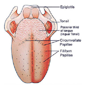 penyebab kanker lidah, gejala kanker lidah, cara mengobati kanker lidah