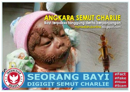 Bayi kena gigitan semut Charlie di Indonesia, semut charlie bahaya, digigit charlie, bisa semut charlie, kesan gigitan semut charlie, gigitan tomcat, semut kayap makan kulit, mangsa gigitan semut charlie