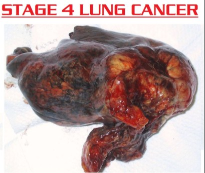 Stage 4 Lung Cancer Prognosis
