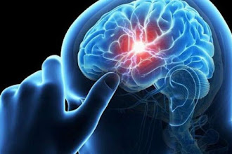 Ανεύρυσμα εγκεφάλου: Προσοχή στα «αθώα» του συμπτώματα