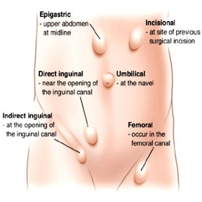 Spigelian hernia Pictures, Symptoms, Causes, Recovery, Repair