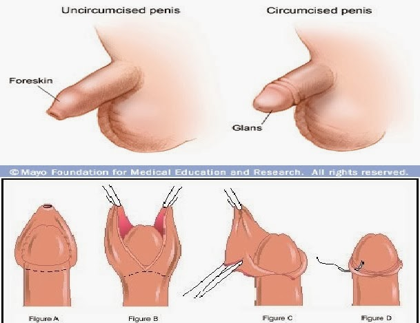 What is better circumcised or uncircumcised
