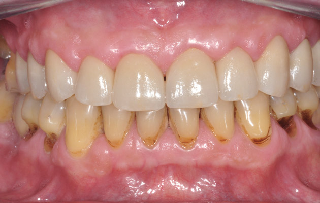 Top Soyez votre propre dentiste! Voici des astuces pour enlever  EB16