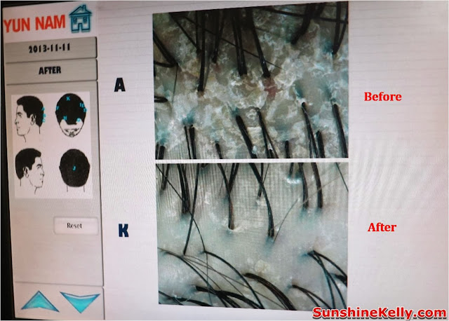mediterranean hair loss, female hair loss, premature hair loss, post natal hair loss, ring-shape hair loss, dandruff, herbalogy