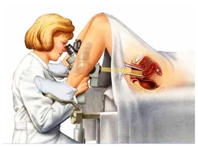 Cara Mengobati Infeksi Rahim Pasca Kuret Secara Alami