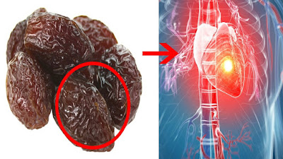The Most Beneficial Fruit For Strokes, Heart Attacks, Cholesterol And Hypertension
