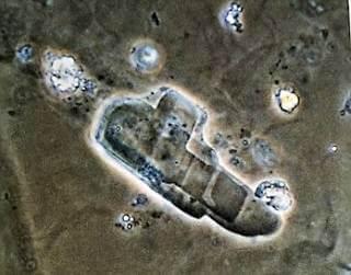 idrar kolesterol kristalleri