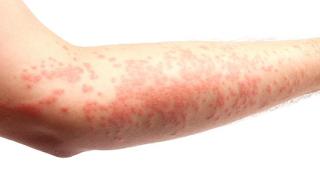 obat alergi