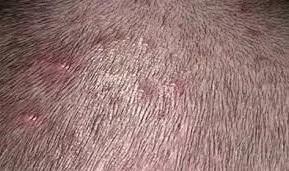 Acne Necrotica Miliaris Scalp Treatment