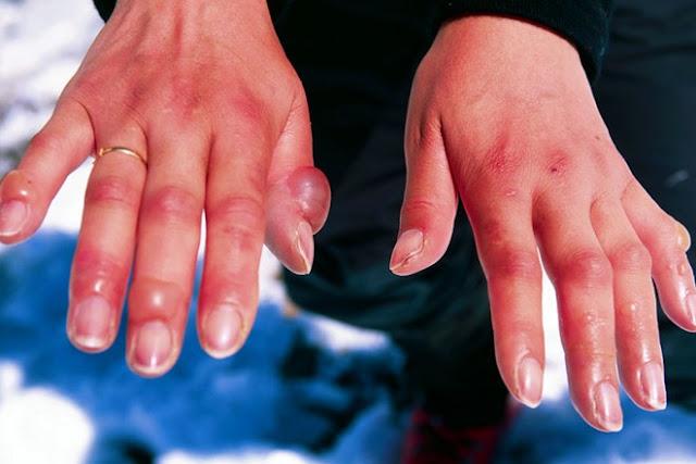 علاج تثليج الأصابع