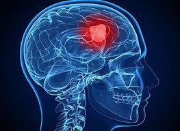 Cancer Has Spread To Brain : Brain Metastasis
