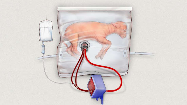 Researchers Create An Artificial Womb To Grow Preterm Lambs