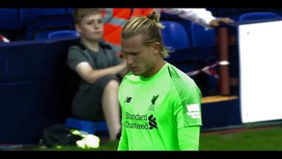 Liverpool Boss Jurgen Klopp defends goalkeeper after mistake in friendly