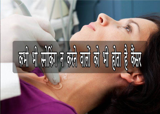 World Head and Neck Cancer Day special news, world, head, cancer, day, Special, news, indore hindi news, mp news, neck