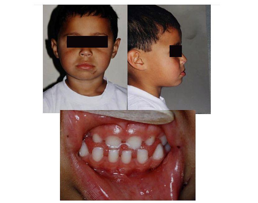Fratura mandibular