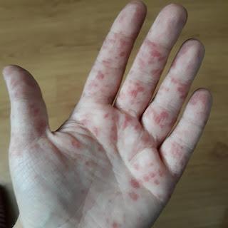 plamy na dłoniach