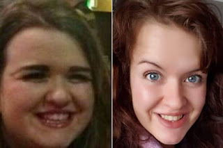 Dramatic weight loss story
