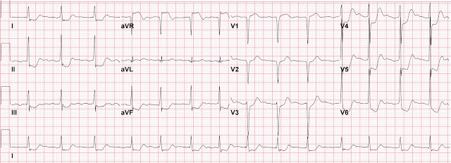 Dr Smith's ECG Blog STElevation In AVR With Diffuse STDepression Unique Ecg Pattern