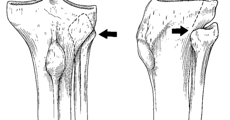 i love physical therapy: Proximal tibiofibular ligament