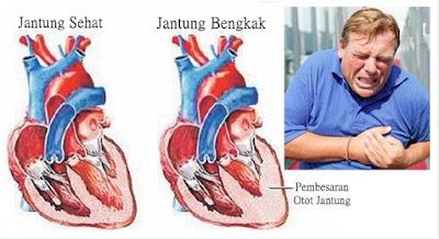 http://mustahabbah.blogspot.com/2016/02/penyebab-dan-bahaya-penyakit-jantung.html