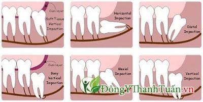 Cách chữa viêm lợi trùm cực an toàn hiệu quả răng khôn mọc lệch