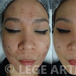 New Success Story: Acne-Prone Skin
