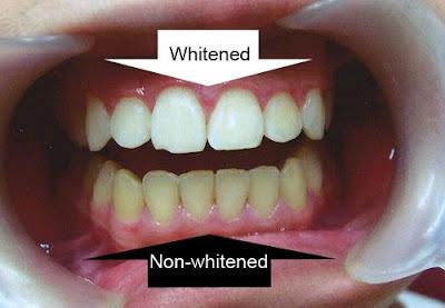 tẩy trắng răng tại nha khoa có mấy loại -2