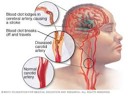 Mengatasi Sakit Stroke Ringan, apa nama obat ampuh stroke berat?, bagaimana cara ampuh mengobati stroke masih ringan?