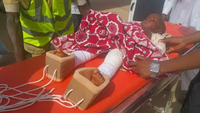 4-year-old boy mutilated by his step-mum, flown to Abuja for proper medical care
