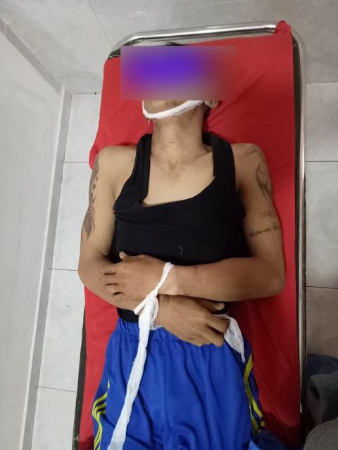 Door.. Residivis Sadis di Lamteng Tewas Setelah Baku Tembak Dengan Polisi