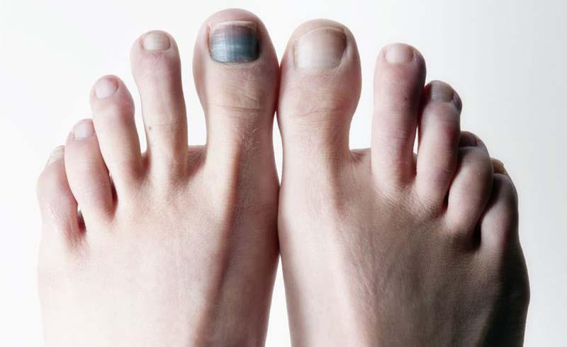 black toenail, black toenail fungus, black spot on toenail