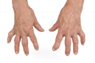 Triệu chứng và cách điều trị bệnh thấp khớp cấp
